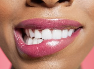 The Pros and Cons of Dental Veneers