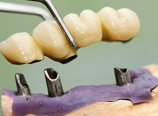 A dentist installs cosmetic dental implants