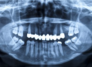 a person who needs dental implants